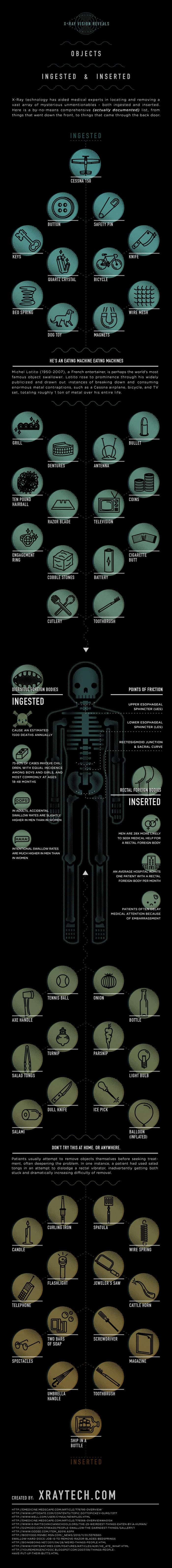 Most Obscure Objects Ingested or Inserted Infographic