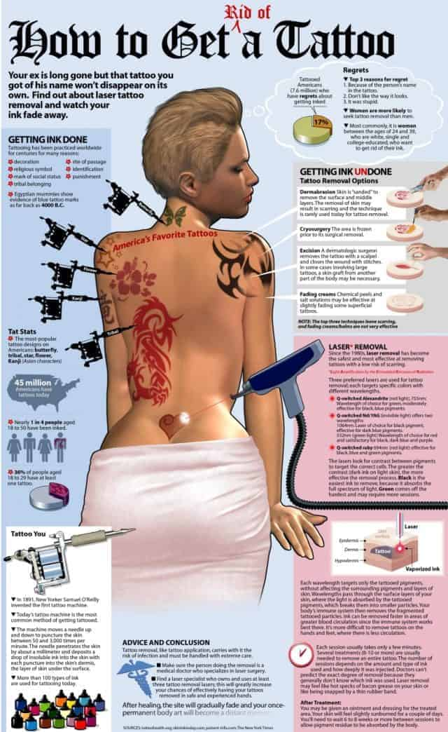 tattoo-removal-640x1044