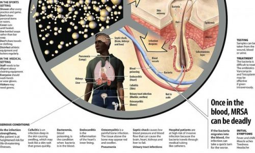 How a Lethal Bacteria Kills Infographic
