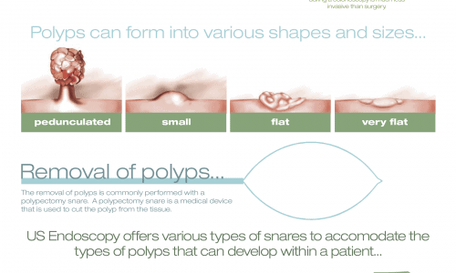 761163A polypectomy infographic