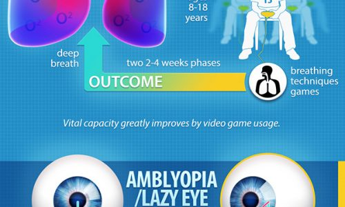 Infographic about how video games can improve health