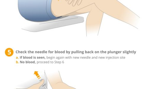 How to Administer an Intramuscular Injection Infographic
