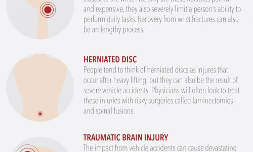 Top Seven Injuries Caused By Car Accidents