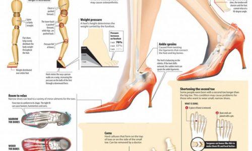 High-Heel Hazards