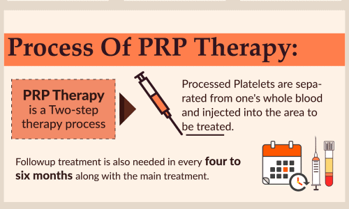The Facts About PRP